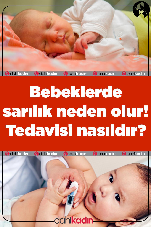 Bebeklerde sarılık neden olur! Tedavisi nasıldır?