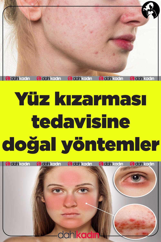 Yüz kızarması tedavisine doğal yöntemler