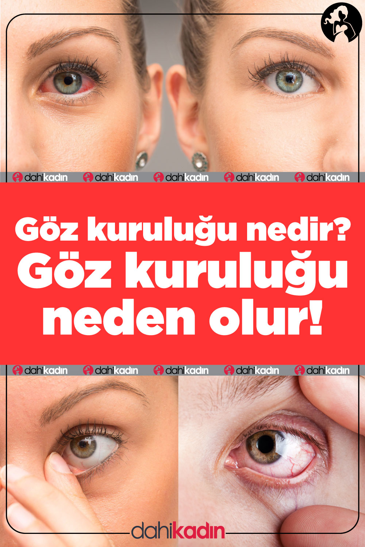 Gözkuruluğu nedir? Göz kuruluğu neden olur!