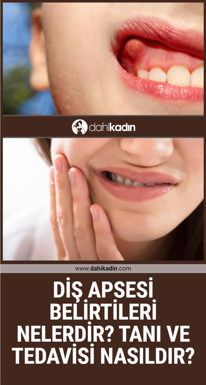 Diş apsesi belirtileri nelerdir? Diş apsesi tanı ve tedavisi nasıldır?
